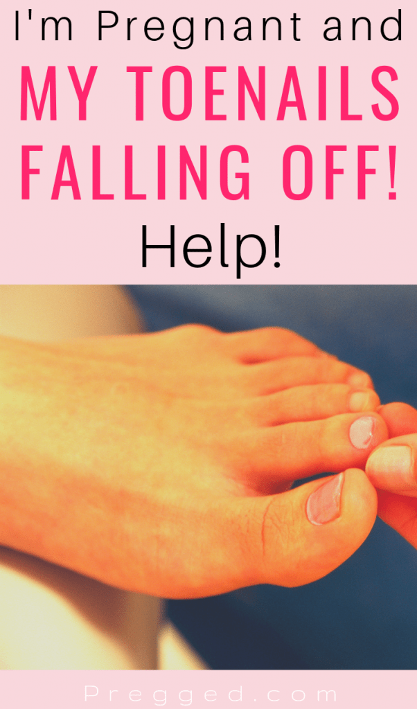 Are your toenails falling off during pregnancy? This strange pregnancy symptom is not as uncommon as you may think! Find out why it happens and what you can do about it...#pregnancysymptoms #pregnancyhealth #pregnancy